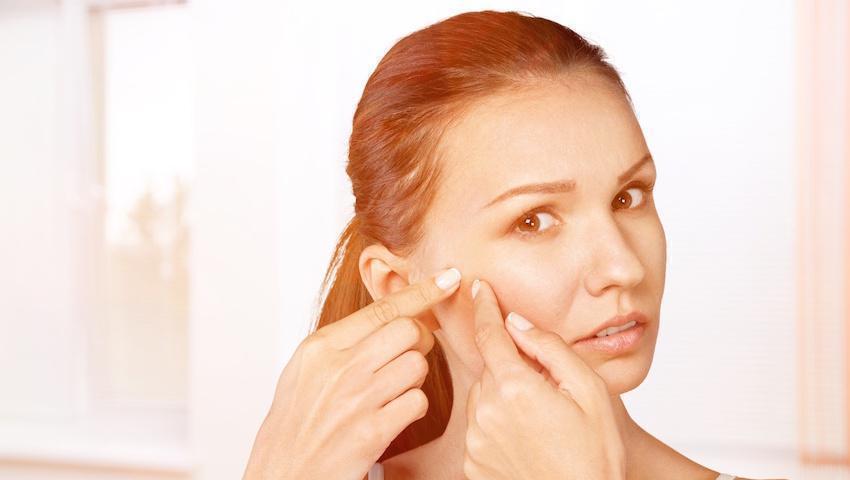 5 idées reçues sur l'acné