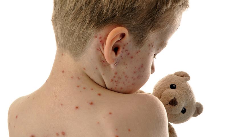 épidémie de rougeole